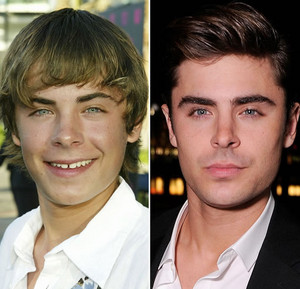 Zac Efron - Then and Now